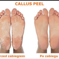 Pedicure_Callus_Peel